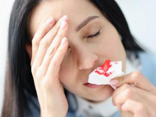 krvácení, nos, krev, bolest