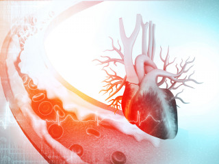 srdce cevy cholesterol krev ateroskleroza