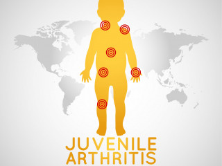 Juvenilní artritida