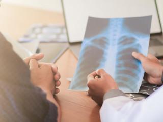 Plíce_snímek_lékař_pacient