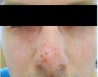 Exacerbace projevů atopické dermatitidy v obličeji