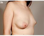 Korekce vrozených vývojových vad prsu a hrudníku technikou lipomodelace