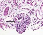 Život ohrožující projevy systémového lupusu a antifosfolipidového syndromu ve vnitřním lékařství