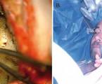 """Awake"" resekce gliomu vpoloze pacienta vpolosedě– kazuistika"