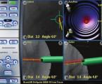 Osteosyntéza pánve pomocí počítačové navigace
