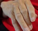 Baricitinib zmírňuje bolest u revmatoidní artritidy účinněji a rychleji než adalimumab