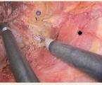 Transanální minimálně invazivní resekce rekta s totální mezorektální excizí po endoskopické mukózní resekci