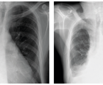 Specifics of tuberculosis at the elderly in these days