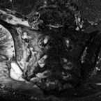 The role of magnetic resonance imaging in diagnostics of axial spondyloarthritis