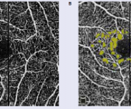 Ako monitorovať detského pacienta aadolescenta sdiabetickou retinopatiou: kazuistika 20-ročnej pacientky aangio OCT