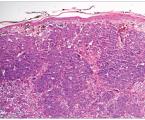 Maligní melanom – od klasické histologie k molekulárně genetickému testování