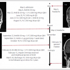 Successful Treatment of Meningoencephalitis due to Cryptococcus gattii with Ommaya Reservoir and Intrathecal Injection of Amphotericin B – a Case Report