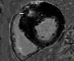 Význam zobrazení srdce pomocí magnetické rezonance v diagnostice hypertrofické kardiomyopatie<br>Část I