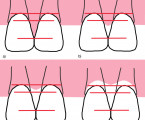 Prediction of the Interdental Papilla Presence between 