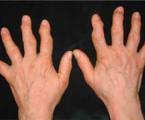 Osteoartróza jako součást metabolického syndromu?