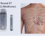 Atrial fibrilation and diabetes mellitus