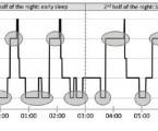 Spánková endoskopie – nový požadavek na anesteziologa v diagnostice a léčbě syndromu obstrukční spánkové apnoe
