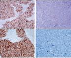 Uzlinová metastáza karcinomu zMerkelových buněk bez kožního primárního ložiska – kazuistické sdělení