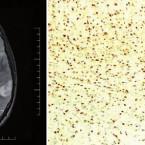 Genetické a epigenetické faktory podmiňující vznik a prognózu mozkových gliomů – souhrn současných poznatků