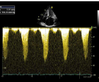 Význam periprocedurálního poklesu tlakového gradientu ve výtokovém traktu levé komory po alkoholové septální ablaci u pacientů s hypertrofickou obstrukční kardiomyopatií
