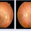 Ako monitorovať detského pacienta aadolescenta sdiabetickou retinopatiou:
