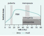 Issues related to secondary osteoporosis associated with growth hormone deficiency in adulthood