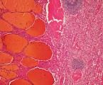 Hamartomy dutiny břišní a retroperitonea <br>– souhrnné sdělení doplněné kazuistikou
