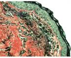 Histologická a histochemická analýza retrakční kapsy pars tensa ušního bubínku u dětí