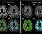 Quantifying brain volumes for Multiple Sclerosis patients follow-up in clinical practice – comparison of 1.5 and 3 Tesla magnetic resonance imaging