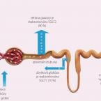 Dapagliflozin a studie DECLARE – budoucnost léčby diabetes mellitus?