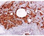 Intersticiální plicní onemocnění  asociovaná skouřením