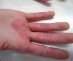 Profesionální proteinová kontaktní dermatitida<br> – popis dvou případů