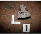 Analýza krevních stříkanců na příkladech  zpraxe: Jsou výpočty po aplikaci parabolické  trajektorie využitelné?