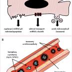 MikroRNA v kardiologii – přehled pro klinickou praxi