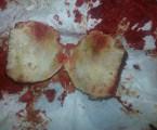 Avaskulární nekróza hlavice femuru