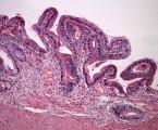 Vzácná komplikace koloskopie –  cholelitiáza s komplikacemi