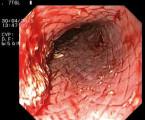 Samoexpandibilní potahovaný metalický stent Daniš jako bridging k transplantaci jater