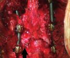 Kazuistika: Dorzální subluxace L4-5 v kombinaci s kompresivní zlomeninou L4