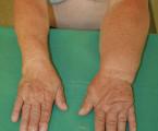Lymfedém po operacích na spádových lymfatických uzlinách pro karcinom prsu