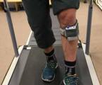 Pilotní studie efektu ambulantní funkční peroneální stimulace