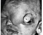 Holoprosencephaly – case report