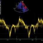 Přehled echokardiografických parametrů v diagnostice srdečního selhání se zachovalou ejekční frakcí levé komory