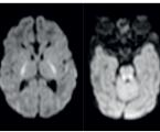 Neketotická hyperglycinémie: případ závažné kongenitální hypotonie diagnostikovaný magnetickou rezonancí