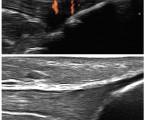Muskuloskeletální ultrasonografie u pacientů s psoriázou a psoriatickou artritidou