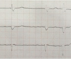 "Case report: severe bradycardia, a reversible cause of ""Cardio-Renal-Cerebral Syndrome"""