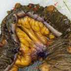 Multiple neuroendocrine tumor of the small bowel: a case report and a review of literature