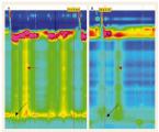 Vplyv nitroglycerínu na manometrické parametre u pacientov s achaláziou