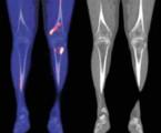 Schnitzlerové syndrom<br>Diferenciální diagnostika, přehled léčebných možností apopis 5případů léčených anakinrou