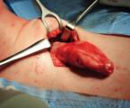 Ganglioneurom, raritní příčina nádoru měkkých tkání krku v dospělosti