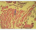 Myocarditis and inflammatory cardiomyopathy